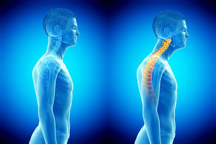 correct head posture