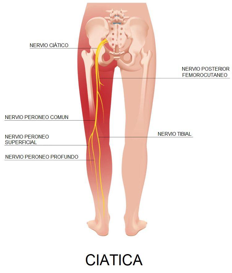 El dolor de espalda y la ciatica