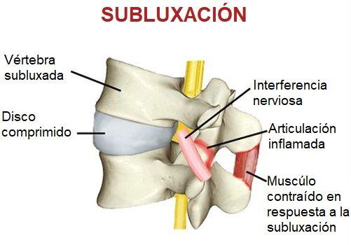 El dolor de espalda y la subluxacion vertebral
