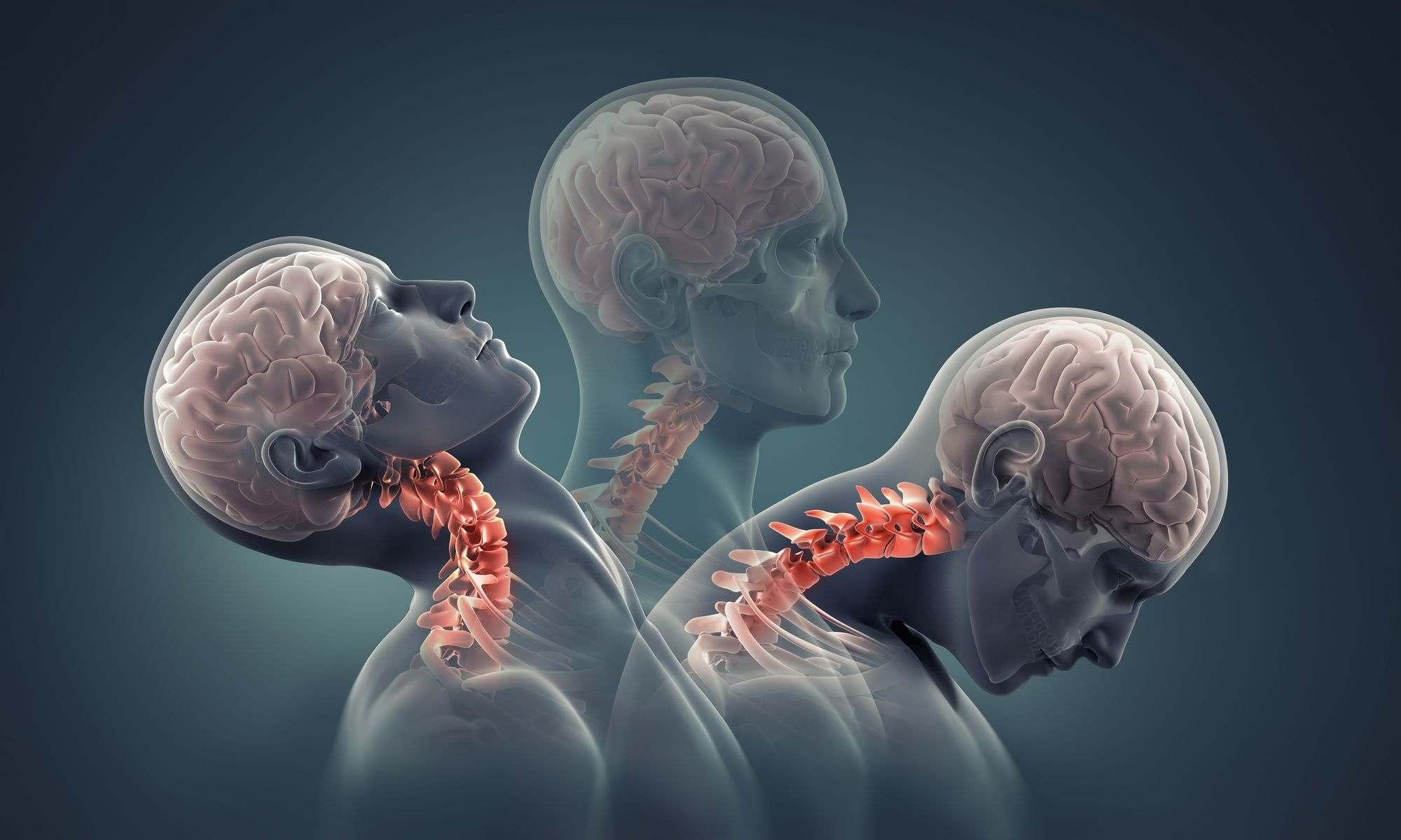 Qué hacer por el dolor de cuello
