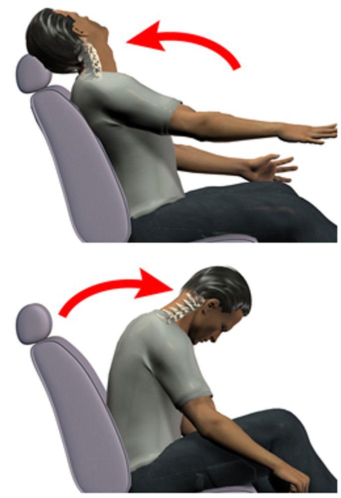 Como el latigazo cervical causa dolor de cuello